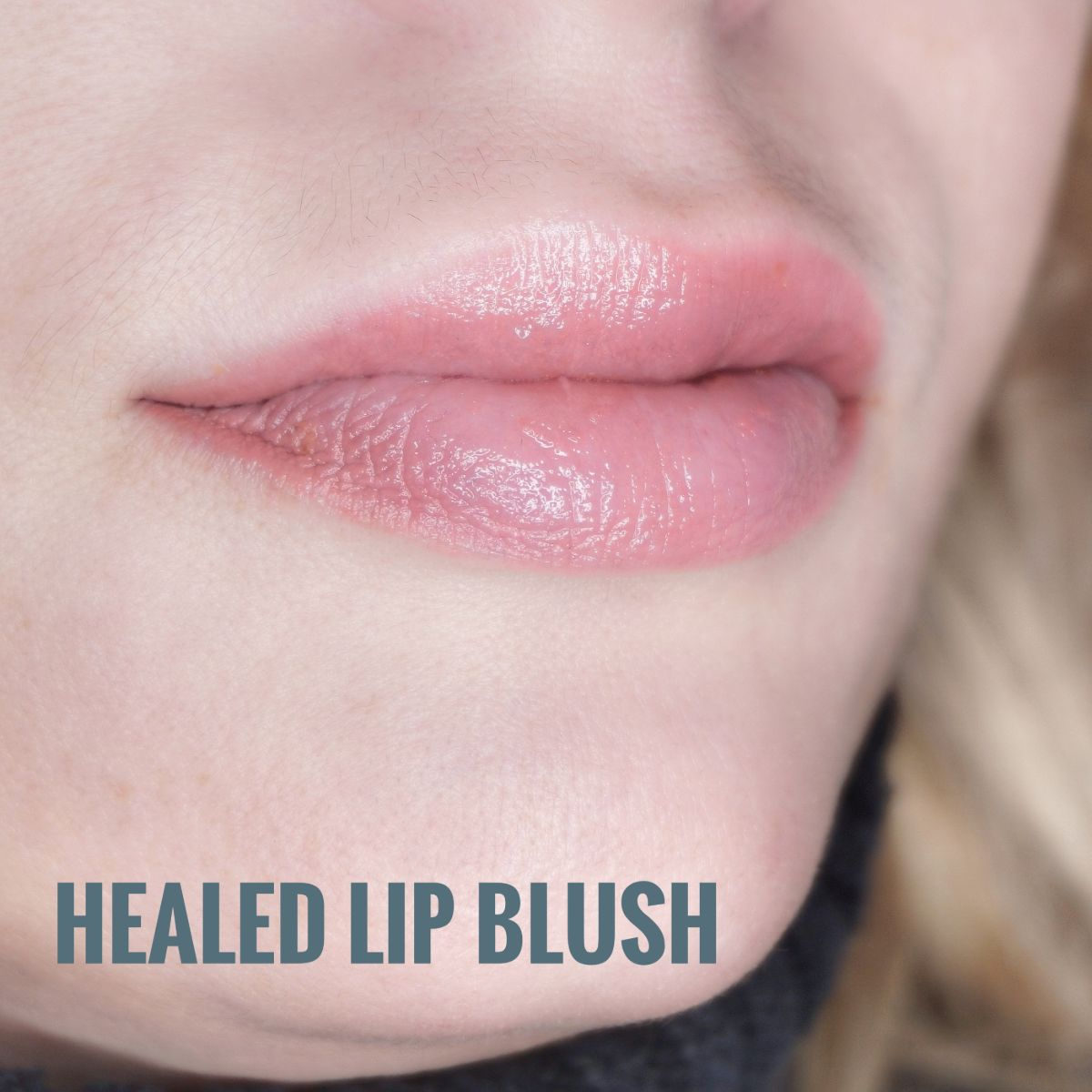 permanent lips Bournemouth